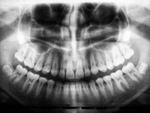 acute_dental_of_fountain_hills