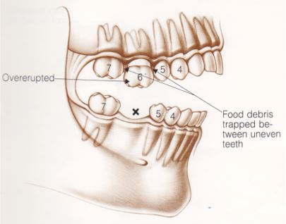 why replace missing back teeth